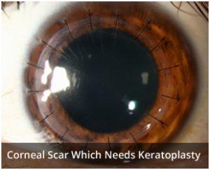 eye-after-keratoplasty