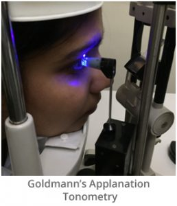 goldmanns-applanation-tonometry